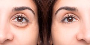 bolsas ojos cosmética natural