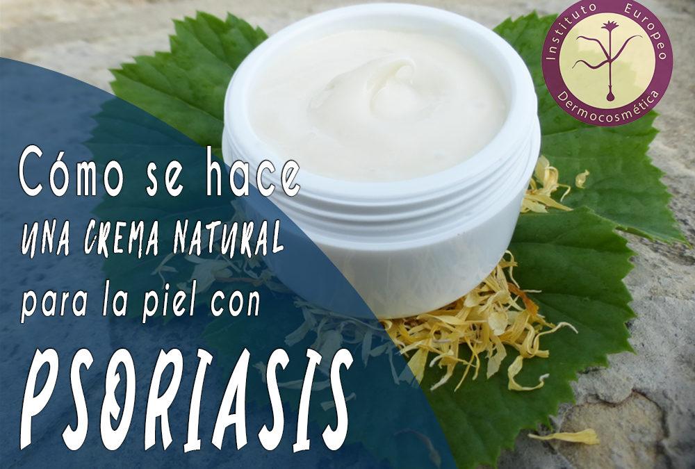 Cómo se hace una Crema Natural para la Piel con Psoriasis